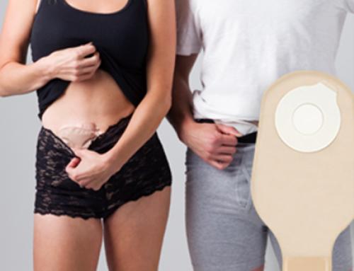 Τι είναι η στομίες και τι πρέπει να γνωρίζετε